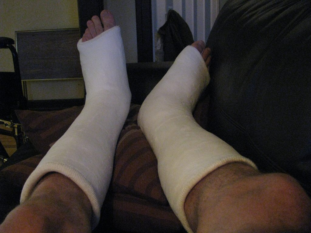a pair of casts